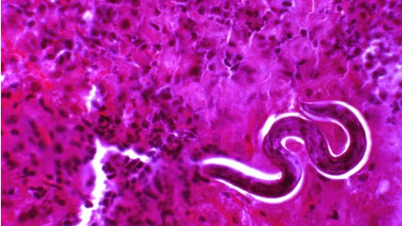Researchers Find 'Sign Post' Toward New Way to Fight Roundworms
