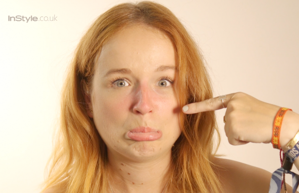 How To Cover Sunburn (Burnt Nose Be Gone!)